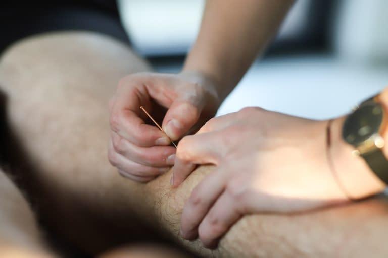 dry needling acupunctuur kinesist roeselare